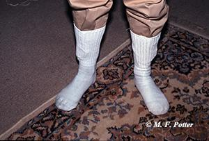 White socks can help reveal if adult fleas are present in an area.