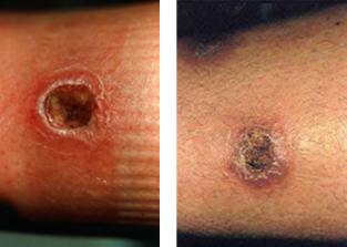 Muchas condiciones medicales son confundidas con picaduras de la reclusa marrón.