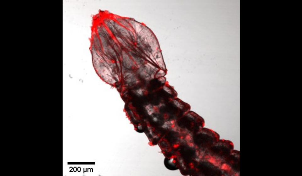 Confocal microscopy shows fluorescing dsRNA in EAB tissues